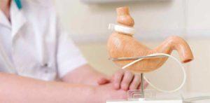 ΕΟΠυυ βαριατρικη χειρουργικη επεμβαση