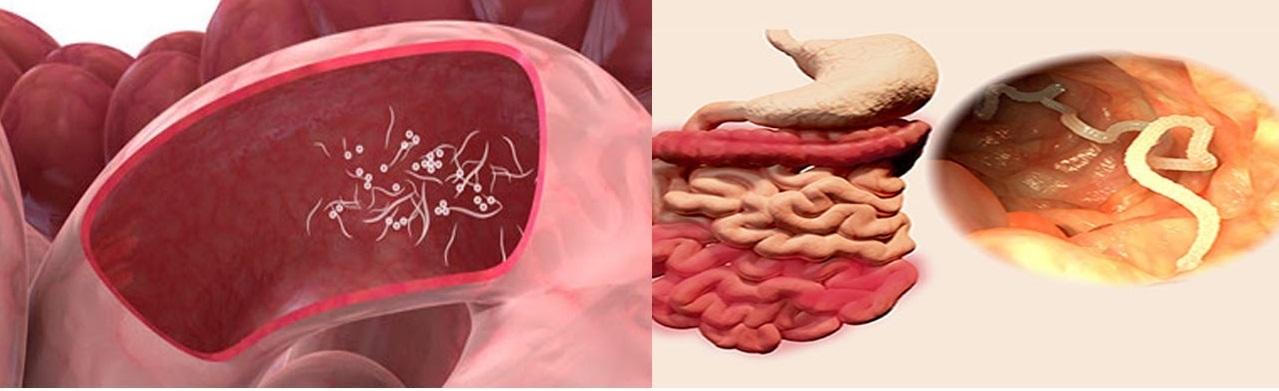 λοιμωξη pinworm