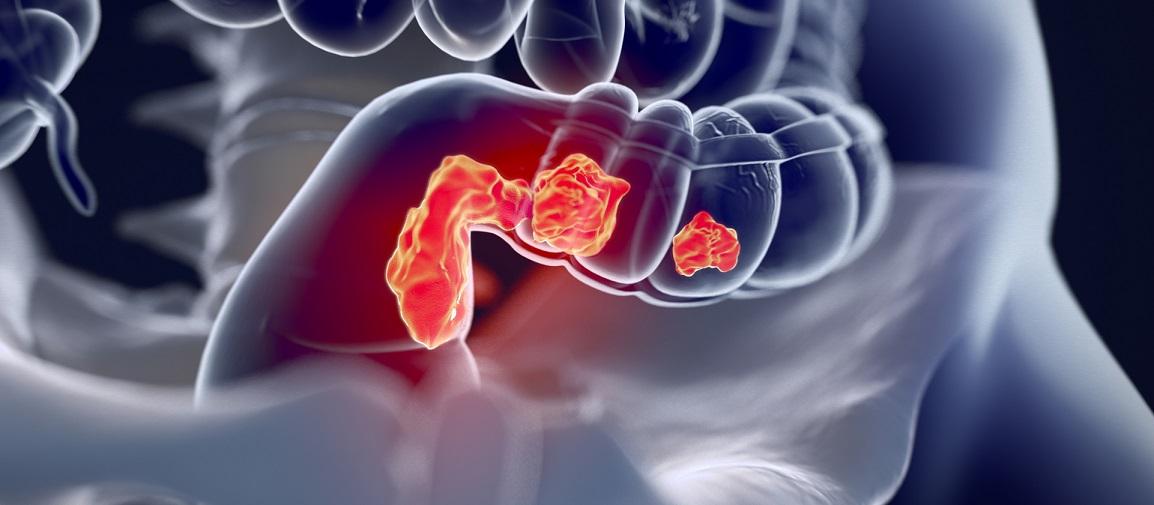 Προεγχειρητική ακτινοθεραπεία και καρκίνος του ορθού