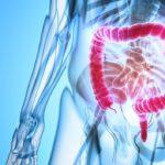 παραγοντες κινδυνου καρκινου