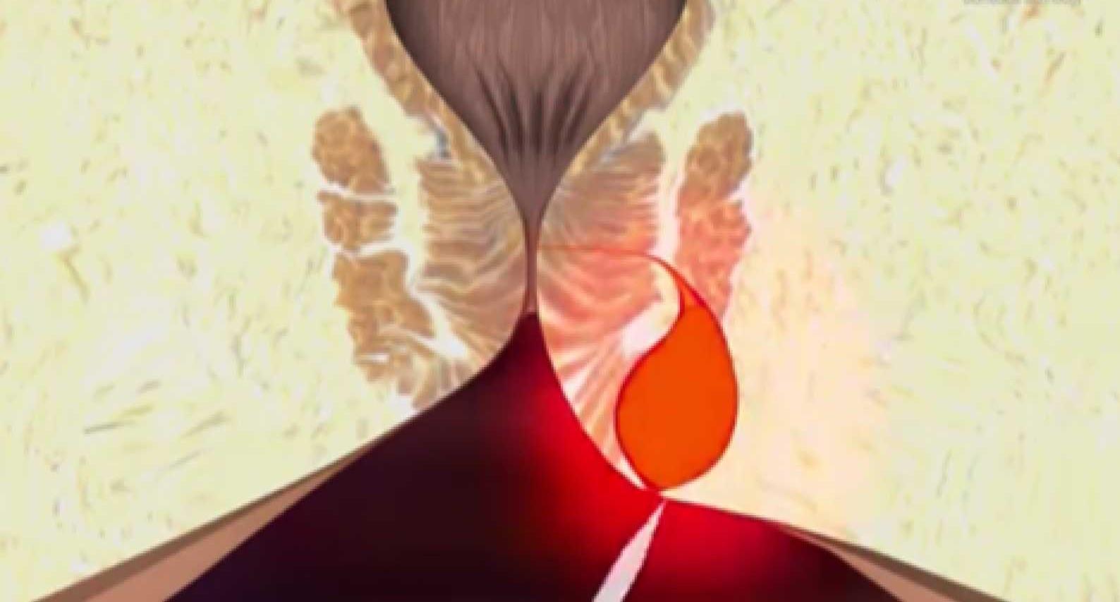 Τι προκαλεί πρωκτικό συρίγγιο;