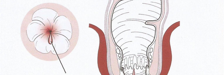θεραπεια ραγαδας στον πρωκτο