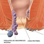 ανατομία αιμορροΐδων