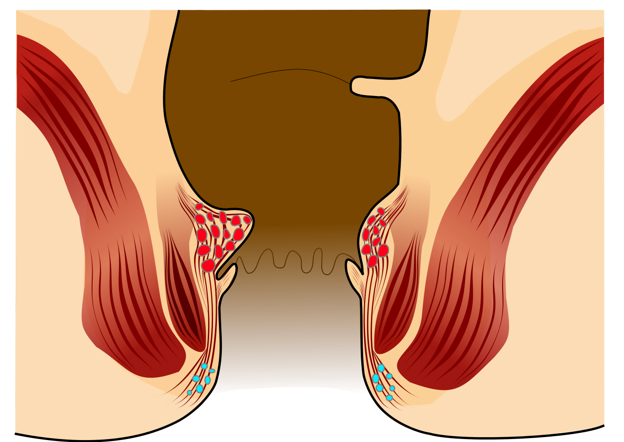 αιμορροιδες βαθμος 1