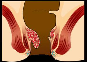 αιμορροιδες βαθμος 2