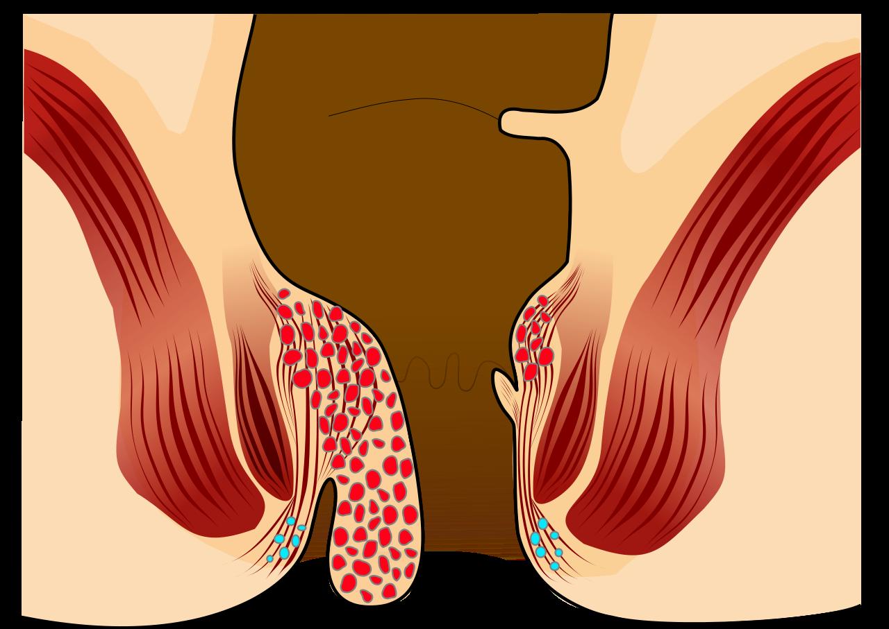 αιμορροιδες βαθμος 3