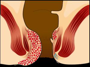 αιμορροιδες βαθμος 4