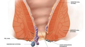 διάγραμμα για τις αιμορροΐδες