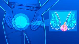 εικόνα αιμορροΐδων