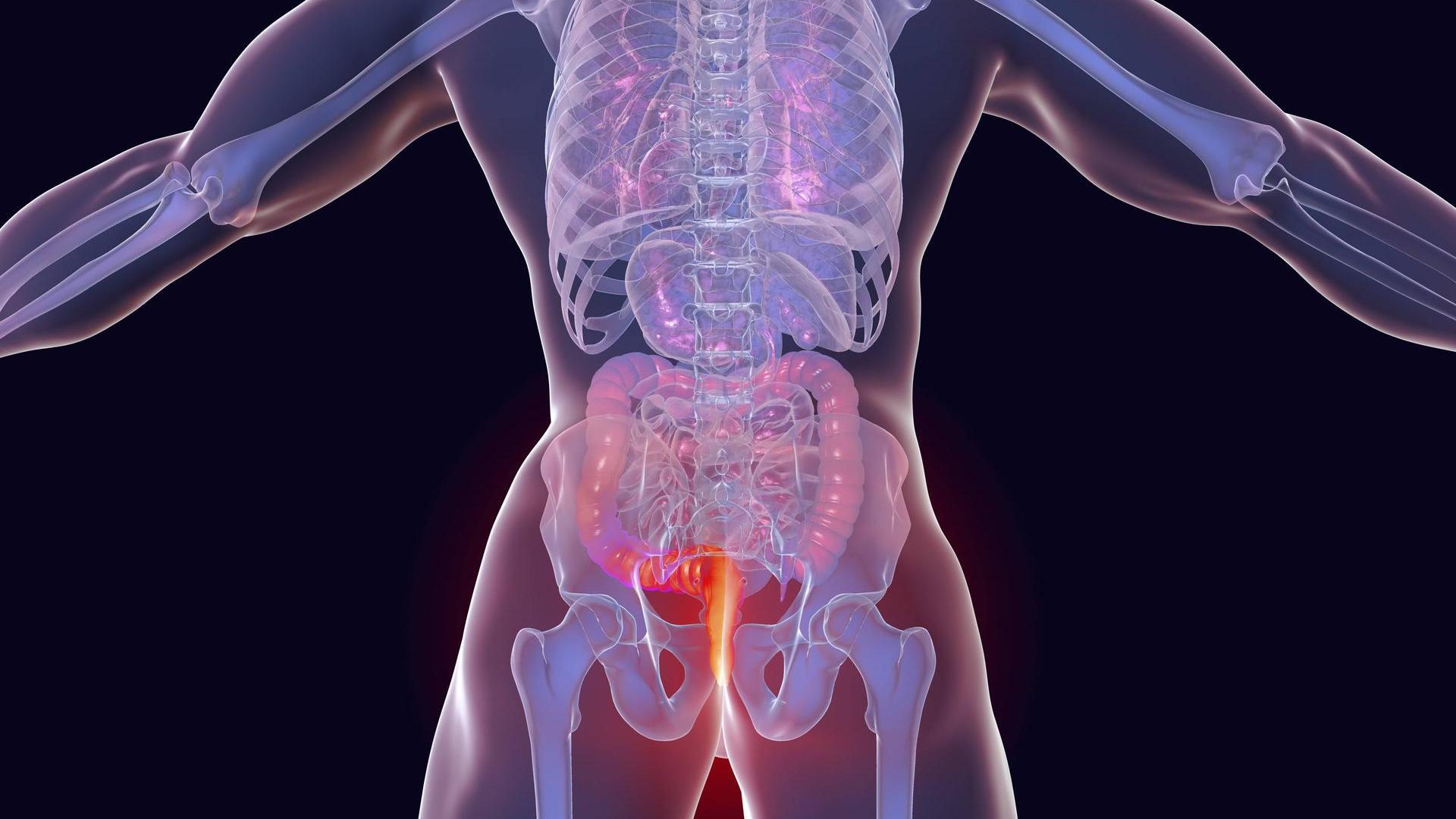 καρκίνος πρωκτού - μοντέλο ψηφιακό