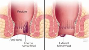 Εεσωτερικες και εξωτερικες αιμορροιδες