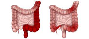 Σχέδιο με τους τύπους της κολίτιδας