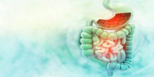 Εκκολπωματίτιδα-Αίτια & Συμπτώματα-Σύχγρονη Θεραπεία